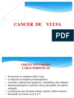 Cancer de Vulva Unu