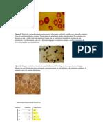 Reticulocitos.pdf