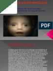 Definición y Fisiopatologia de la Diarrea Aguda Infecciosa en Pediatría