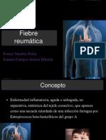 Fiebre Reumatica Final FINAL