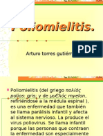 Poliomielitis.