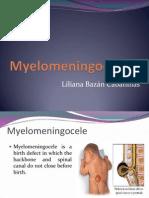 Myelomeningocele