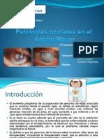 Patologías oculares en el Adulto 2