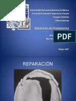 Reparacion de Protesis (PROSTO)