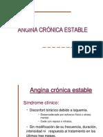 Angina de Pecho.
