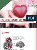 Estenosis Aortica Semio
