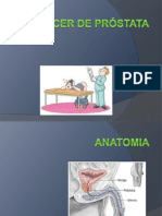 Cáncer de prostata  expo lista