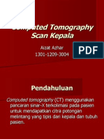 CT Scan Kepala