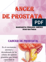 Cancer de Prostata Mi Expo