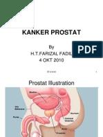 Presentation1,Prostat Cancer
