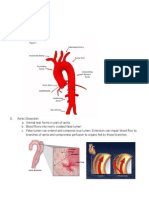 acute aortic dissection - notes