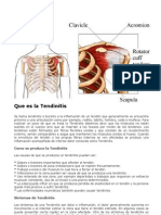 Que Es La Tendinitis (2)