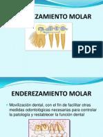 ENDEREZAMIENTO MOLAR- LOREIS Y FERNANDO.ppt