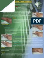 TX Ulceras Flebostaticas - Laser