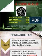 FISTULA UMBILIKALIS new.ppt