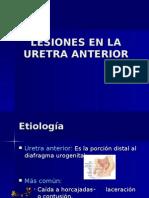 Lesiones de La Uretra Anterior -> Futura Médica