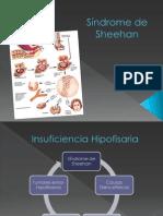 Síndrome Sheehan