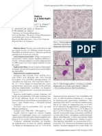 Mastocitosis_sistematica_agresiva