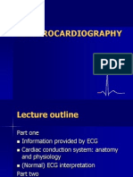 ECG Normal and Abnormal
