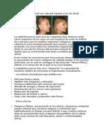 Lifting Facial Con Cabezal Tripolar y Luz de Diodo