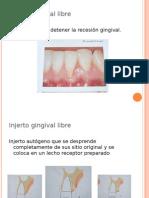 FRENILECTOMIA (periodoncia)
