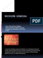Recesion Gingival Hugo