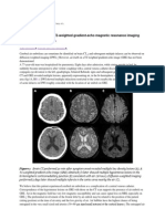 Cerebral air emboli on T2‐weighted gradient‐echo magnetic resonance imaging
