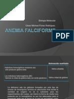 Anemia FalciformeBM