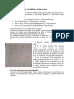 SDRA (1)