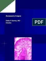 Accessory Tragus