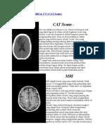 Perbedaan Antara MRI Dan CT Scan