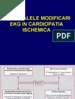 ECG ischemie