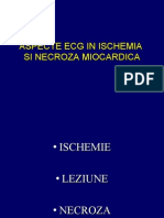 Aspecte ECG in ischemia si necroza miocardica