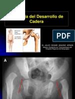 Displasia Caderas Expo Mediunsa