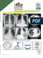 Neumonía adquirida en la comunidad en adultos inmunocompetentes - ACIN 2013