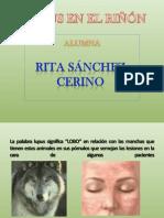TEMA LUPUS EN EL RIÑON