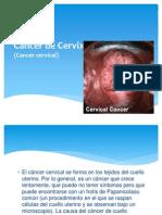 Cancer de Cervix.pptx