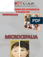 Microcefalia Final (1)
