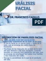 7 Paralisis Facial