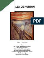 Cefalea Horton