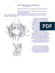 Histerectomia abdominala