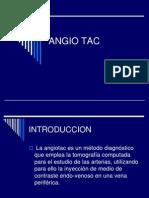 Angio Tac
