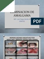 Eliminacion de Amalgama