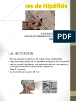 Tumores de Hipofisis