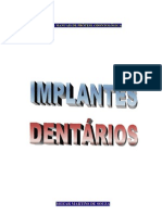 Implantes Dentários (Manual).pdf