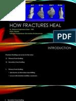 Bone Healing in Fracture