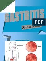 Gastritis (2)