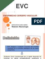 EVC Completo