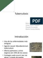 Tuberculosis -Expo Seminario