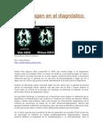 Neuroimagen en el diagnóstico del TDAH
